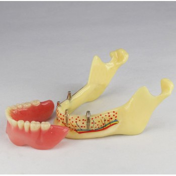 Dientes dentales Implante Modelo Of Jaw Para Study y Teach M-2014b