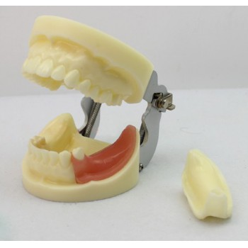 ENOVO Bry Dental Implant Study Modelo Con Removable Teeth