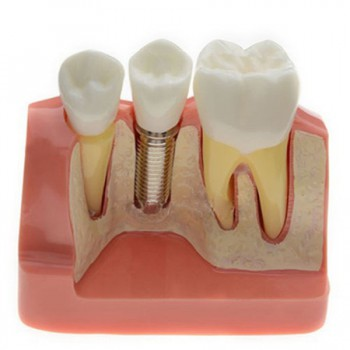Analysis Modelo Para Dental Implant M2017