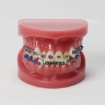 Dental Teeth Malocclusion Correct Con Teeth Bracket Estándar Modelo M3005