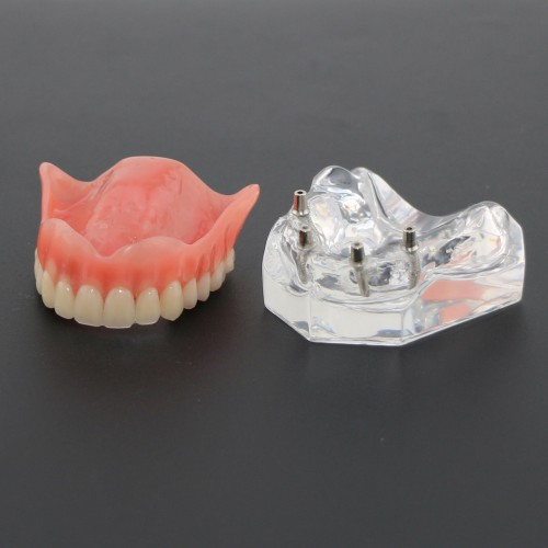 Dental Study Teeth Model Overdenture Superior With 4 Implants Demo Model 6001