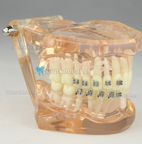 Dental Orthodontic Modelo Con Brackets M3009