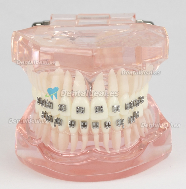 Dental Teeth Malocclusion Correct Con Metal Bracket Estándar Modelo M3001