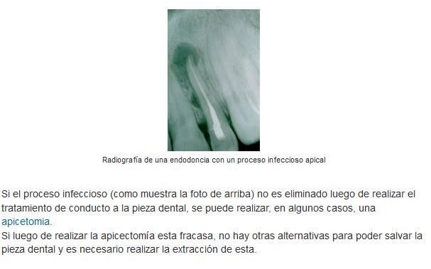 Qué es un tratamiento de conducto o endodoncia