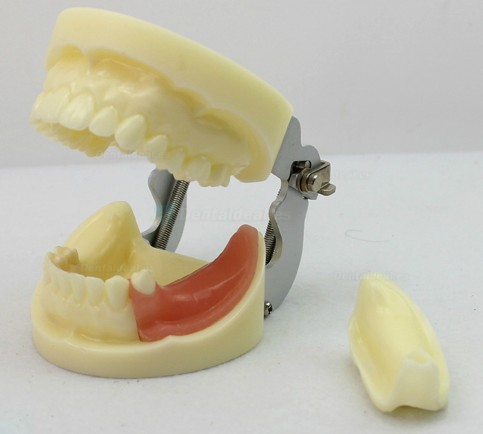 LENOVO Modelo de implante dental extraíble